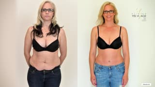 Video - Abdominoplastika - Henrieta