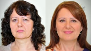 Video - Facelift, necklift, úprava víček - Alena